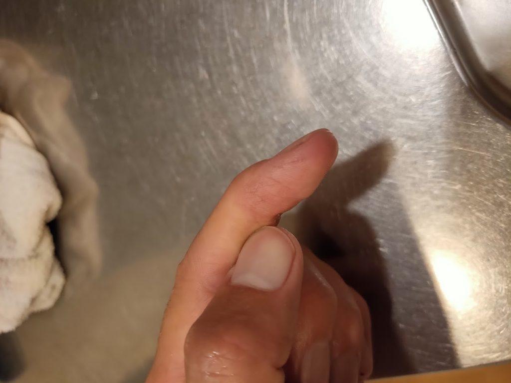 パナソニック洗濯機の送風機器で怪我